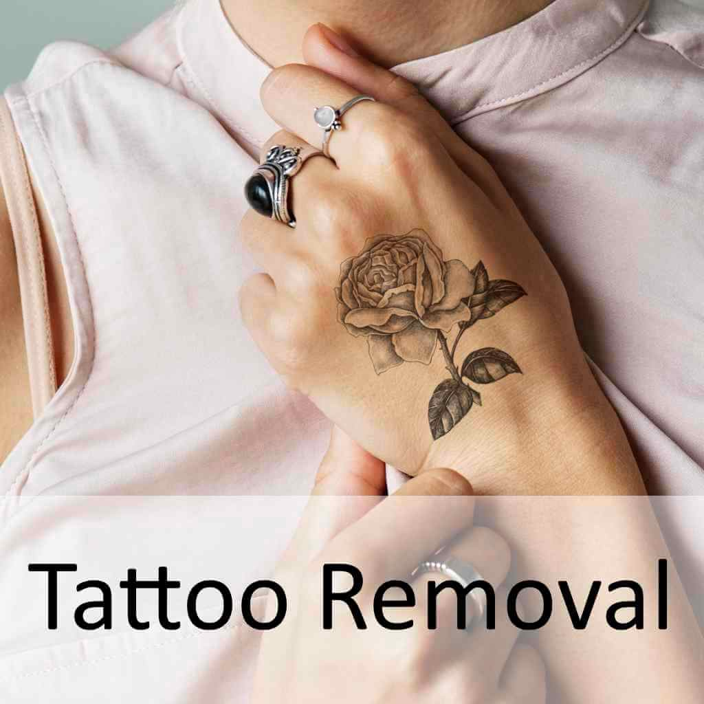 we use Cutera Enlighten treat tattoos for both men and women on all areas of the body both easily and comfortably   Tattoo Removal   Elite Body & Laser Center Ohio