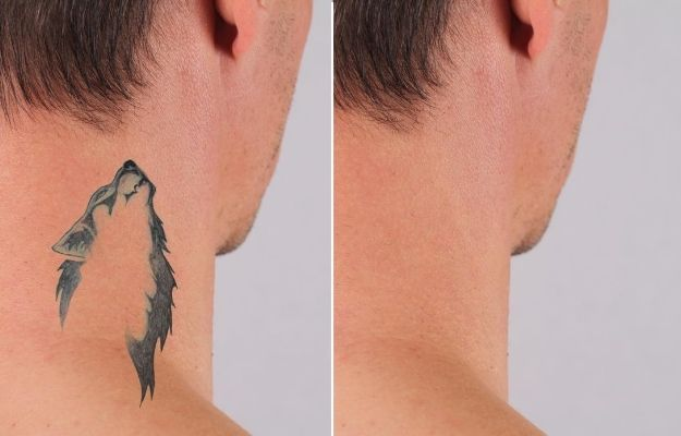 a man's neck before and after taking tattoo removal treatment | How does Enlighten by Cutera work?