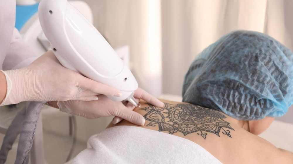 a women is having tattoo removal treatment   Feature   Enlighten By Cutera: The Best Laser Tattoo Removal (How It Works)