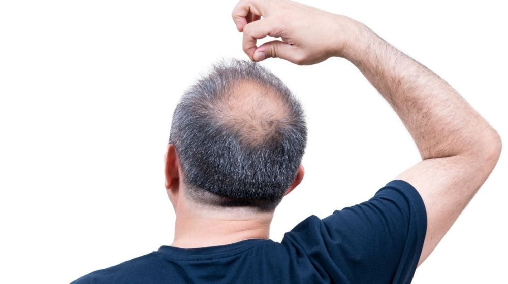 a bald man is picking his hair | Feature | How Balding Patients Fight Hair Loss With PRP Therapy