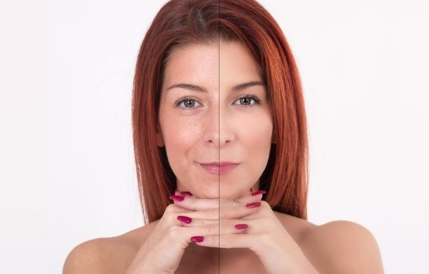 face of one woman before and after using the treatment | 5 Ultherapy Benefits For Looking Younger